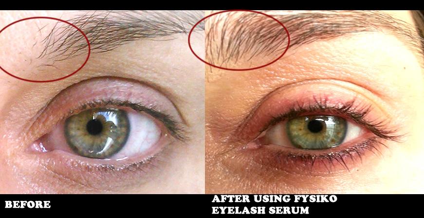 Beafore-and-after-fysiko-eyelash-growth-serum